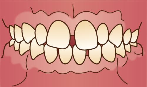 前歯だけ、気になるところだけを治したい方へ