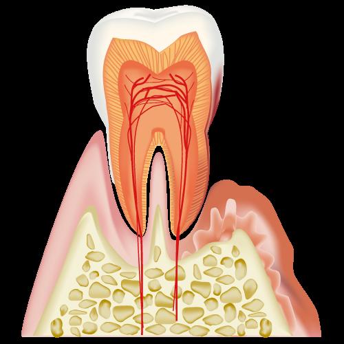 歯周炎(軽度)