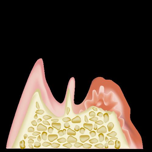 歯周炎(重度)